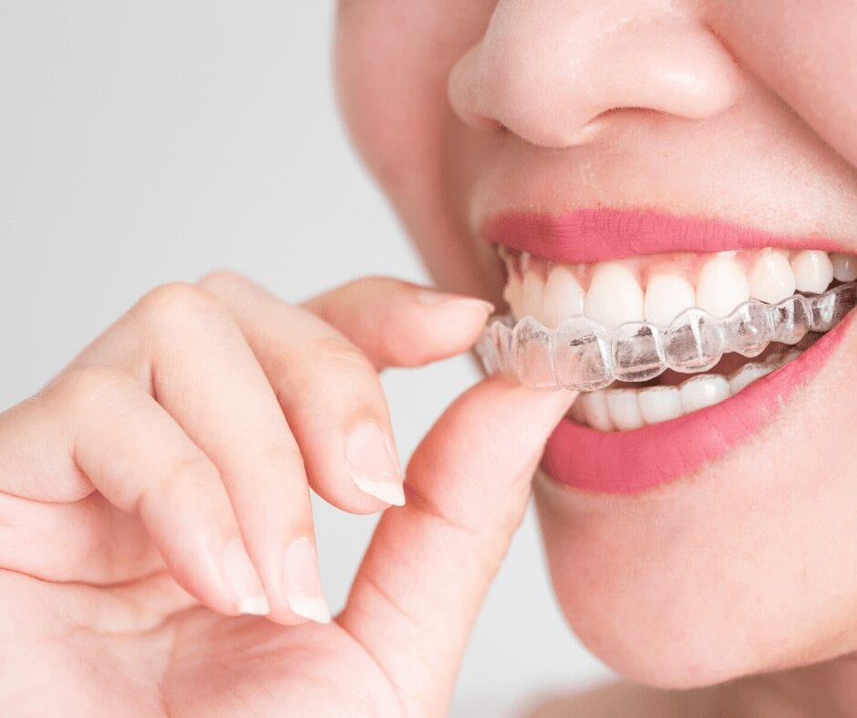 Woman smiling with Invisalign Treatment