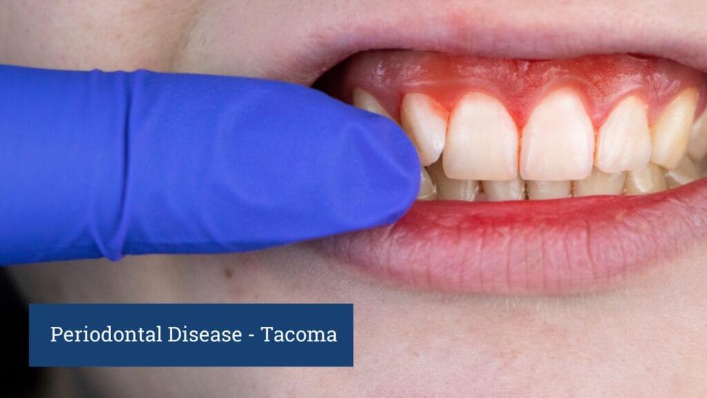 Periodontal disease tacoma