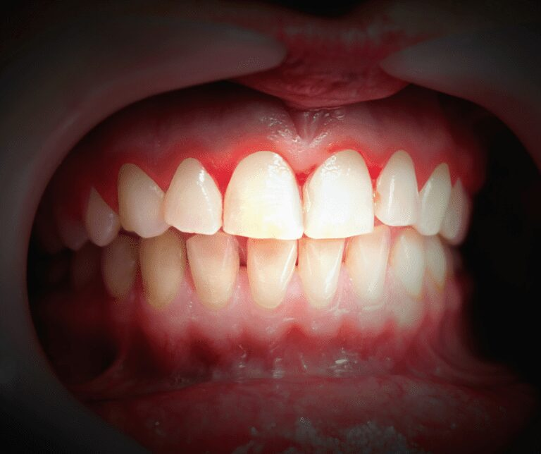 receding gums treatment in tacoma